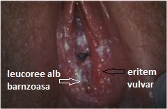 leucoree  iritatie vulvara candida